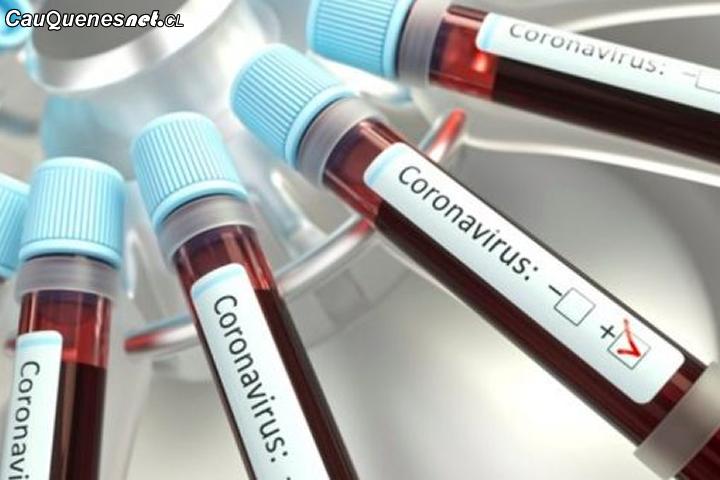 #URGENTE:  Cauquenes presenta su cuarto caso confirmado de Coronavirus